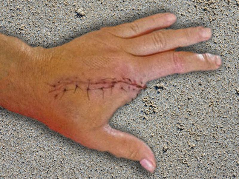 La main de Robert après la morsure par la palourde.
